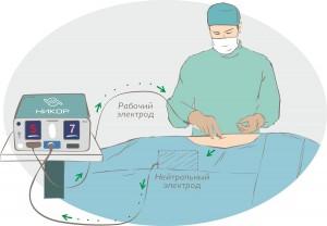Монополярный режим высокочастотной электрохирургии